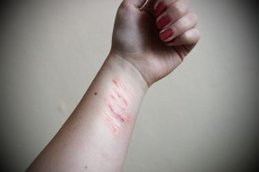 Scars - PLEASE, STOP SELF-HARM by Stella-cat