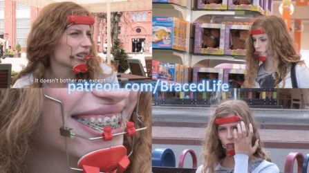 Summer's Orthodontic Headgear Facemask Video by MedicBrace