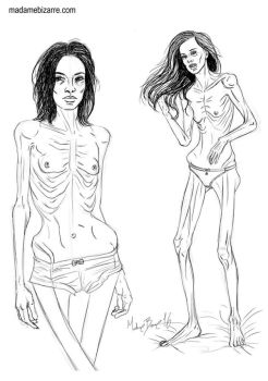 Anorexia 1 by madamebizarreartwork
