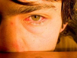 Eye infection 1 by Glutinous45