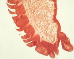 Microscope: Lingua plus papillae filiformes by Soldeen111