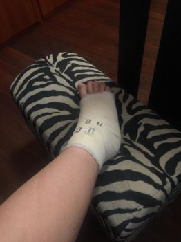 RIP mah ankle hopefully its not broke :T by UndertaleAUgaming13