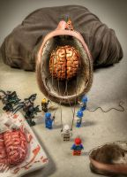 Brain Surgery by owakulukem