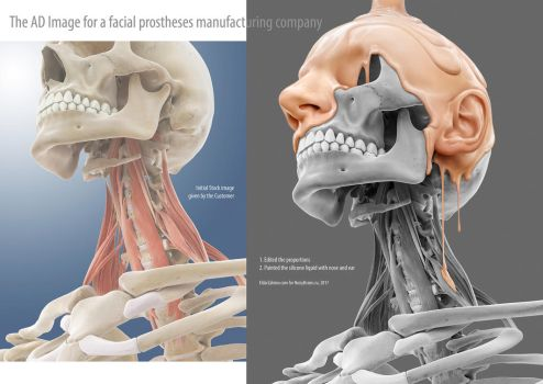 The Image for a Facial prostheses Manufacturer by EldarZakirov