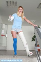 Betty's Shoulder Spica and Long Leg Walking Cast 4 by MedicBrace