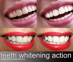action 056 'TEETH WHITENING' by ModernActions