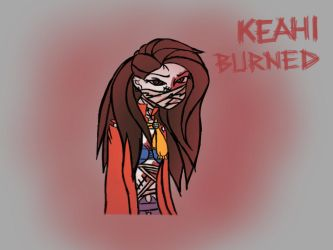 Keahi Burned (Creepypasta OC) by SuperKawaiiRainbows