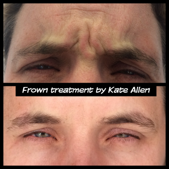 Botox Treatment in Auckland by appearancemedicine