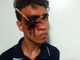 Lacerated eye. by fontenelefx