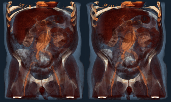Abdominal Aortic Aneurysm 4c by voxel123