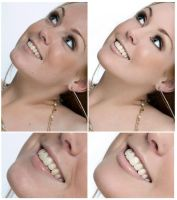 Teeth and Skin Retouch by Nienna1990