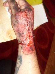 make up test hand wound by pure1morning1scream