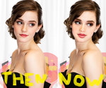Emma  Whatson Then and Now by Venus-Fire