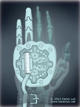 X is for x-ray by karenluk