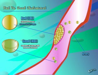 Bad Vs Good Cholesterol by PCHILL