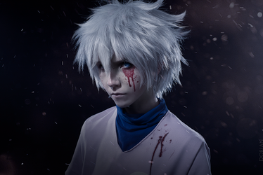 Killua Cosplay by JulietAsakura