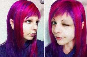 Surgically Modified Elf Ears by ArtificialFlav0ur
