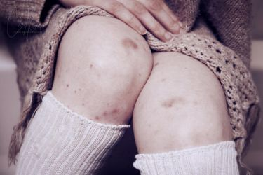 Visible wounds of 'Invisible' illness by ClaraMcGuireArtistry