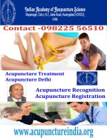 Acupuncture Migraine Treatment by drlohiya