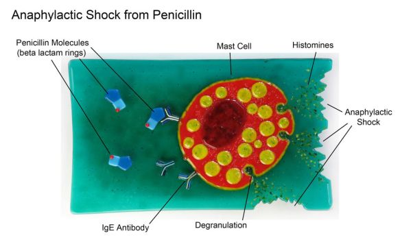 Anaphylactic Shock from Penicillin Fused Glass by trilobiteglassworks