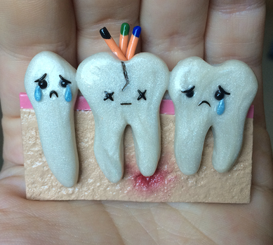 Root Canal Magnet by HideTheDecay
